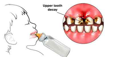 Baby Bottle Syndrome. Upper front teeth are affected most. Dentist Marbella Dr Hotz.