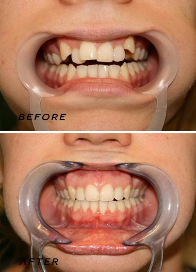Before and after an orthodontic treatment by german dentist Dr Hotz.
