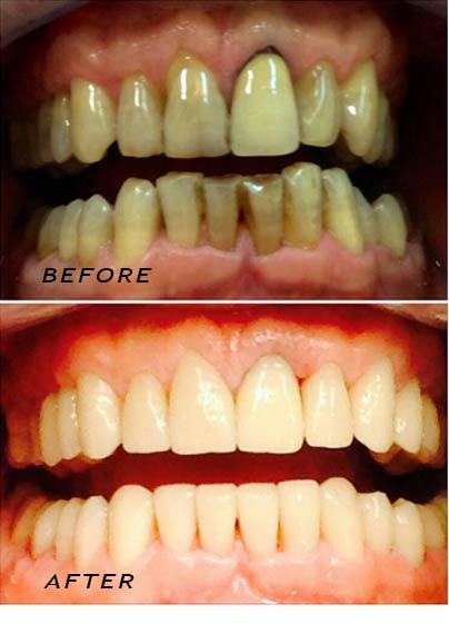 Before and After treatment with porcelain veneers. Dentist Marbella Dr Hotz.