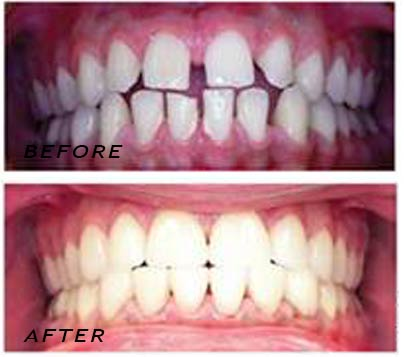 Before and After treatment with hand-made veneers. Dentist Marbella Dr Hotz.