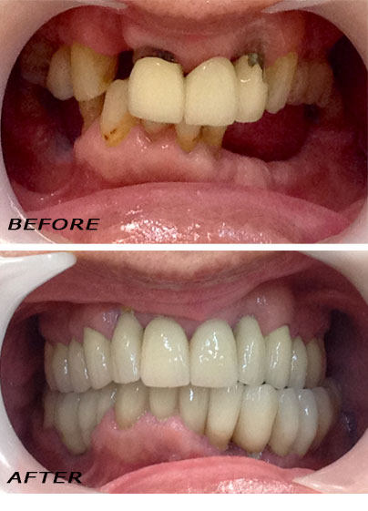 Before and after Complete Makeover with Implants, Crowns and Veneers.