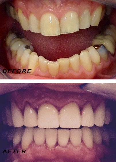 Before and after restorative dental procedures by german dentist Dr Hotz.