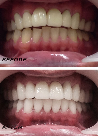 Before and After dental cosmetic treatments. Orthodontic Treatment. Dentist Marbella Dr Hotz.