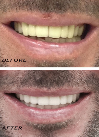 Before and After ceramic veneers and crowns. Orthodontic Treatment. Dentist Marbella Dr Hotz.
