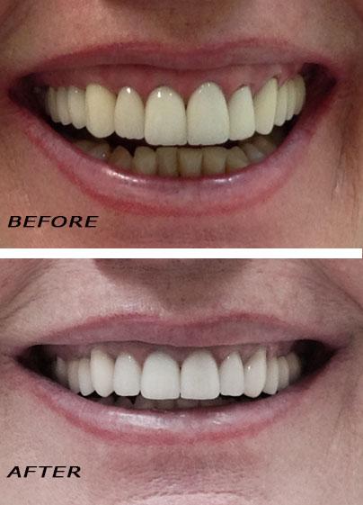 Zahnklinik Dr Htz. Vorher und nachher Fotos.