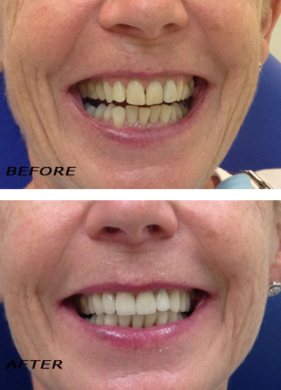 Before and After Cosmetic Dentistry Orthodontic Treatment. Dentist Marbella Dr Hotz.