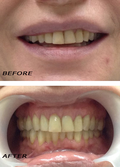 Before and After Direct veneers. Orthodontic Treatment by German Dentist Marbella Dr Hotz.