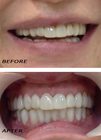 Before and After Reconstruction with laser optimized direct veneers. Orthodontic Treatment. Dentist Marbella Dr Hotz.
