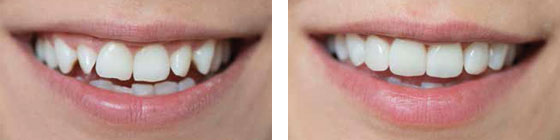 Keramik Veneers, Verblendschalen beliebteste und schnellste Lösung für ein strahlenderes, weißeres Lächeln. Deutsche Zahnärztin Marbella, San Pedro de Alcántara