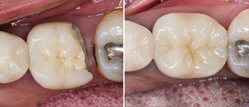 Dental Restoration Reconstruction with Dental Filling like Composite Fillings. Dentist Marbella Dr Hotz.
