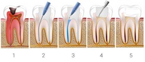 Dental Restoration Procedure. Dentist Marbella Dr Hotz.