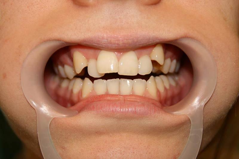 Before Orthodontic Treatment. Dental Clinic Marbella.