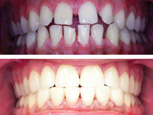 Veneers are placed at the same time using a template. Dentist Marbella Dr Hotz.