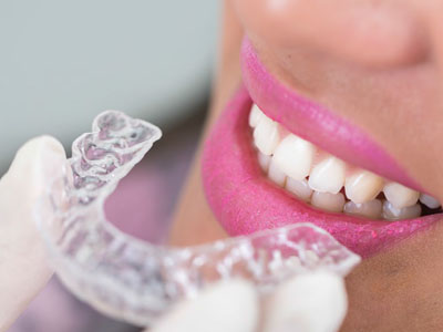 Orthodontic Treatments for Adults. Dentist Marbella Dr Hotz.