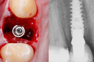 Primary Stability NobelActive Immediate Implant Placement and Immediate Function. Dentist Marbella Dr Hotz.