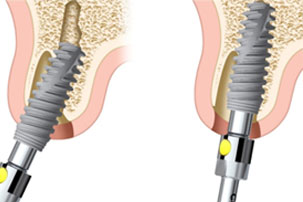 Implant Position NobelActive Immediate Implant Placement and Immediate Function. Dentist Marbella Dr Hotz.