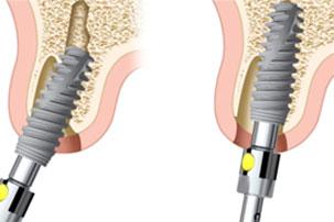 Posición del implante inmediata de implantes y la función inmediata. Clínica Dental San Pedro, Marbella.