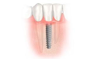 Coloque el implante inmediata de implantes y la función inmediata. Clínica Dental San Pedro, Marbella.