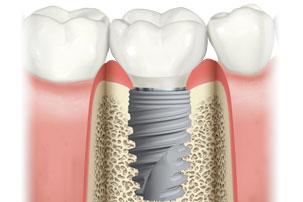 Molares de aspecto natural inmediata de implantes y la función inmediata. Clínica Dental San Pedro, Marbella.