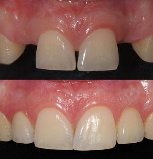Restauración Anterior inmediata de implantes y la función inmediata. Clínica Dental San Pedro, Marbella.