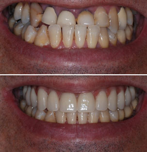 Special laser for the placement of the veneers. Dentist Marbella Dr Hotz.