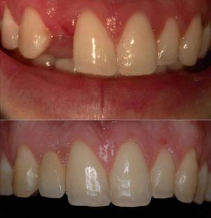 Restauración de un incisivo lateral superior inmediata de implantes y la función inmediata. Clínica Dental San Pedro, Marbella.