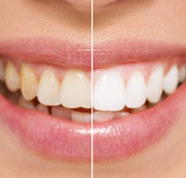 Teeth Whitening Dentist Marbella