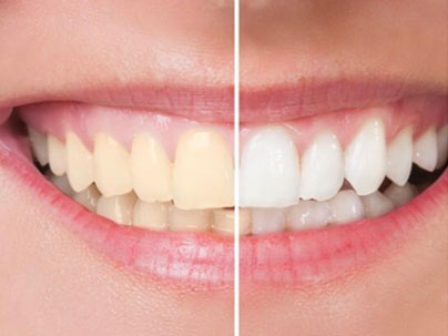 Blanqueamiento Dental Clínica Dental San Pedro, Marbella