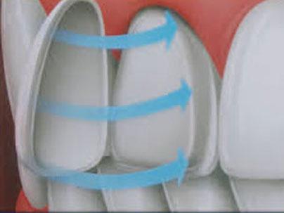 Carillas de cerámica de alta calidad Clínica Dental San Pedro, Marbella
