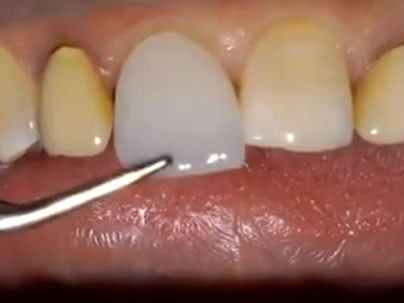 Carillas »Edelweiss« altamente estéticas Clínica Dental San Pedro, Marbella