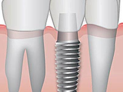 Implantología - tratamientos con implantes dentales Clínica Dental San Pedro, Marbella