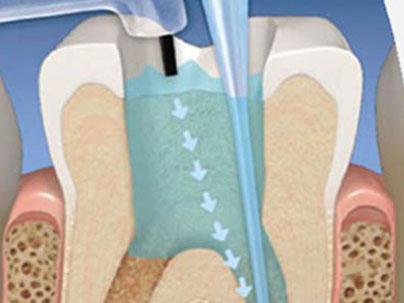 Tratamiento de Conducto (Endodoncia) Clínica Dental San Pedro, Marbella