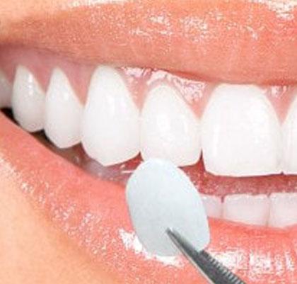 Tratamiento carillas de cerámica de alta tecnología Dentistas San Pedro, Marbella