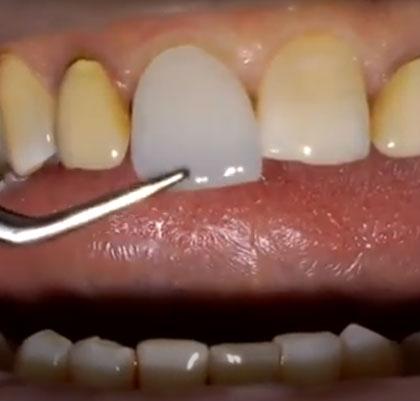 """Tratamiento carillas estéticas """"Edelweiss"""" Dentistas San Pedro, Marbella"""