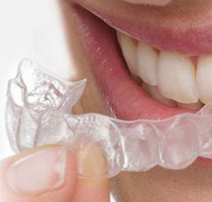 Tratamiento ortodoncia fija e invisible Dentistas San Pedro, Marbella
