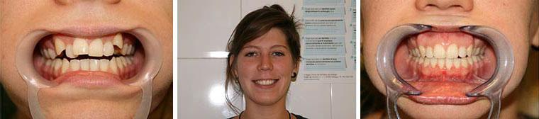 Kieferorthopädischer Behandlung Patientenfoto vorher und nachher. Deutsche Zahnärztin Marbella, San Pedro de Alcántara