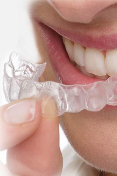 Kieferorthopädie - Unsichtbare Zahnkorrektur. Deutsche Zahnärztin Marbella, San Pedro de Alcántara
