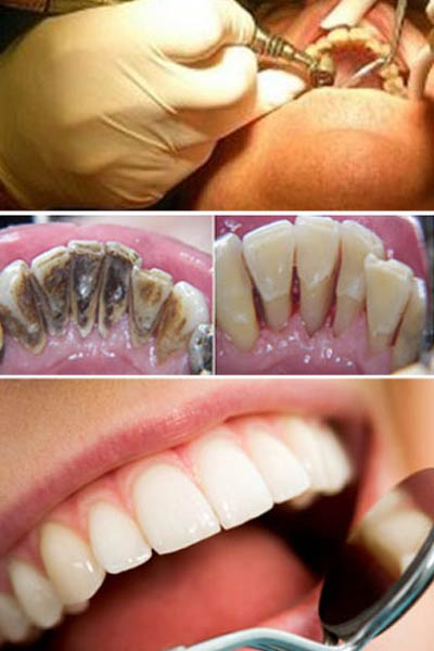 Dental Prophylaxis and Bleaching Marbella.