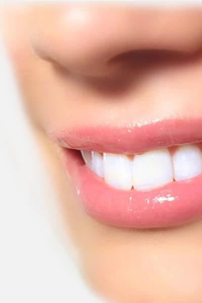Teeth Whitening Marbella.