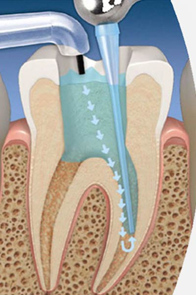 Root Canal Treatment Marbella.