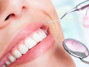 La Limpieza Dental Profesional. Clínica Dental San Pedro, Marbella.